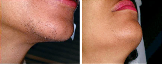 Electrolysis for Permanent Hair Removal